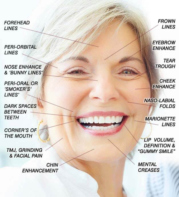 older women Botox areas