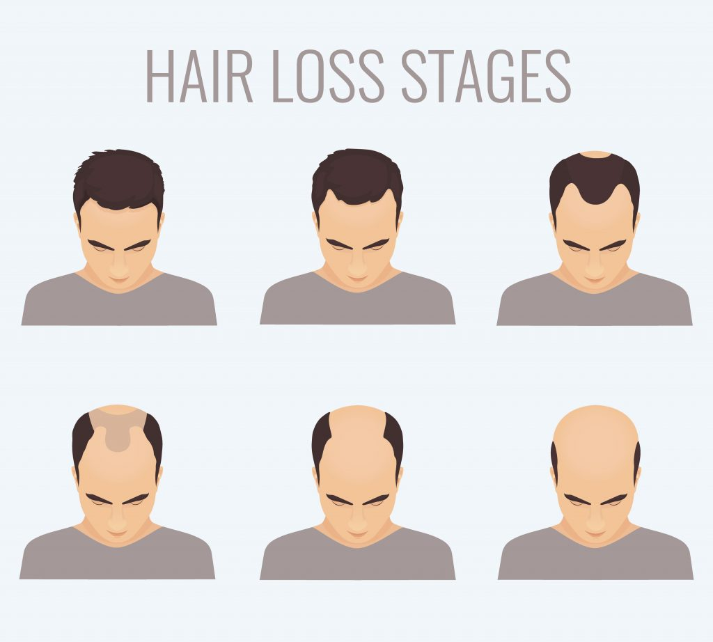 men's hair loss treatment and treatment for male pattern baldness in scottsdale