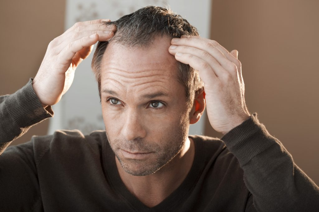men's hair loss treatment services in scottsdale