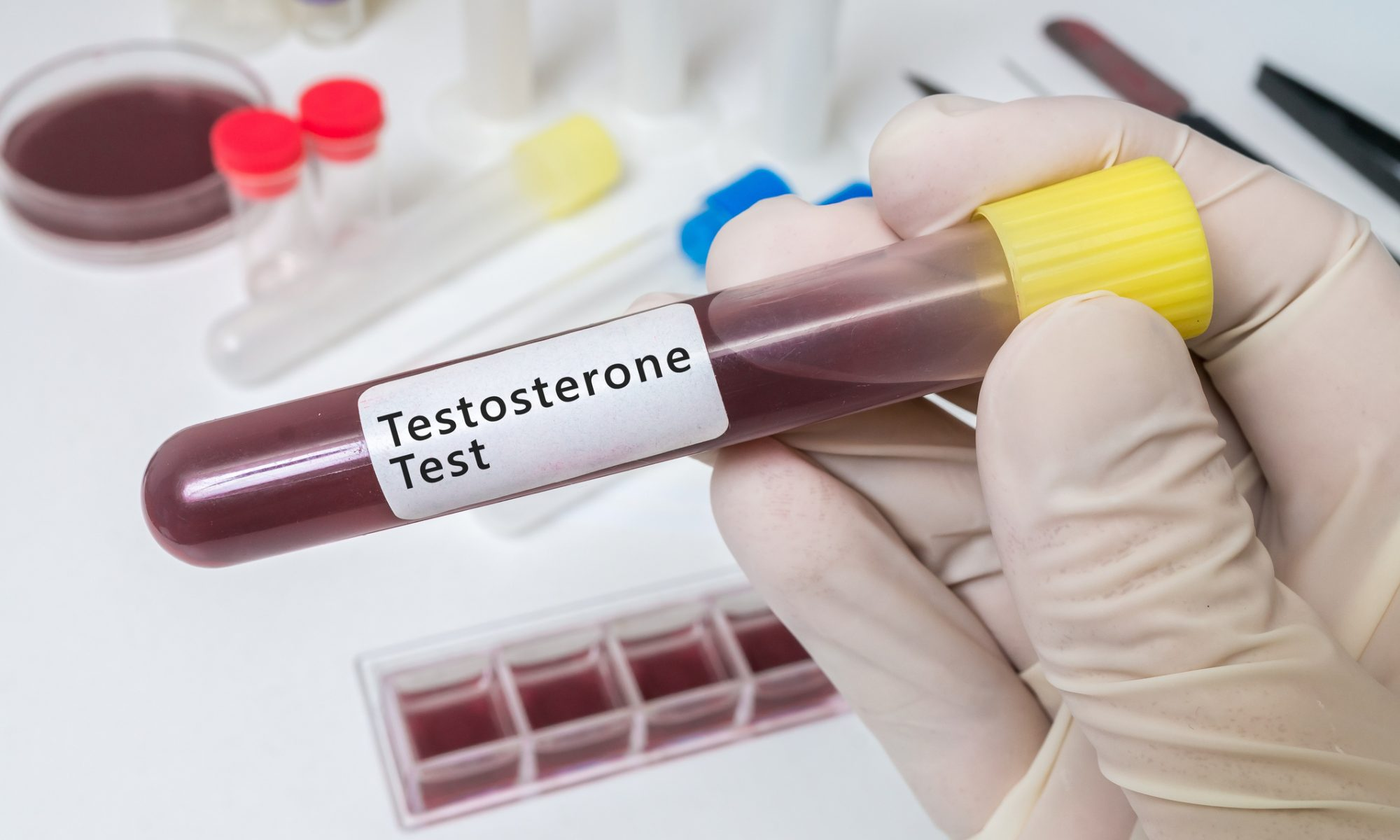 Hand holds test tube for testosterone test.