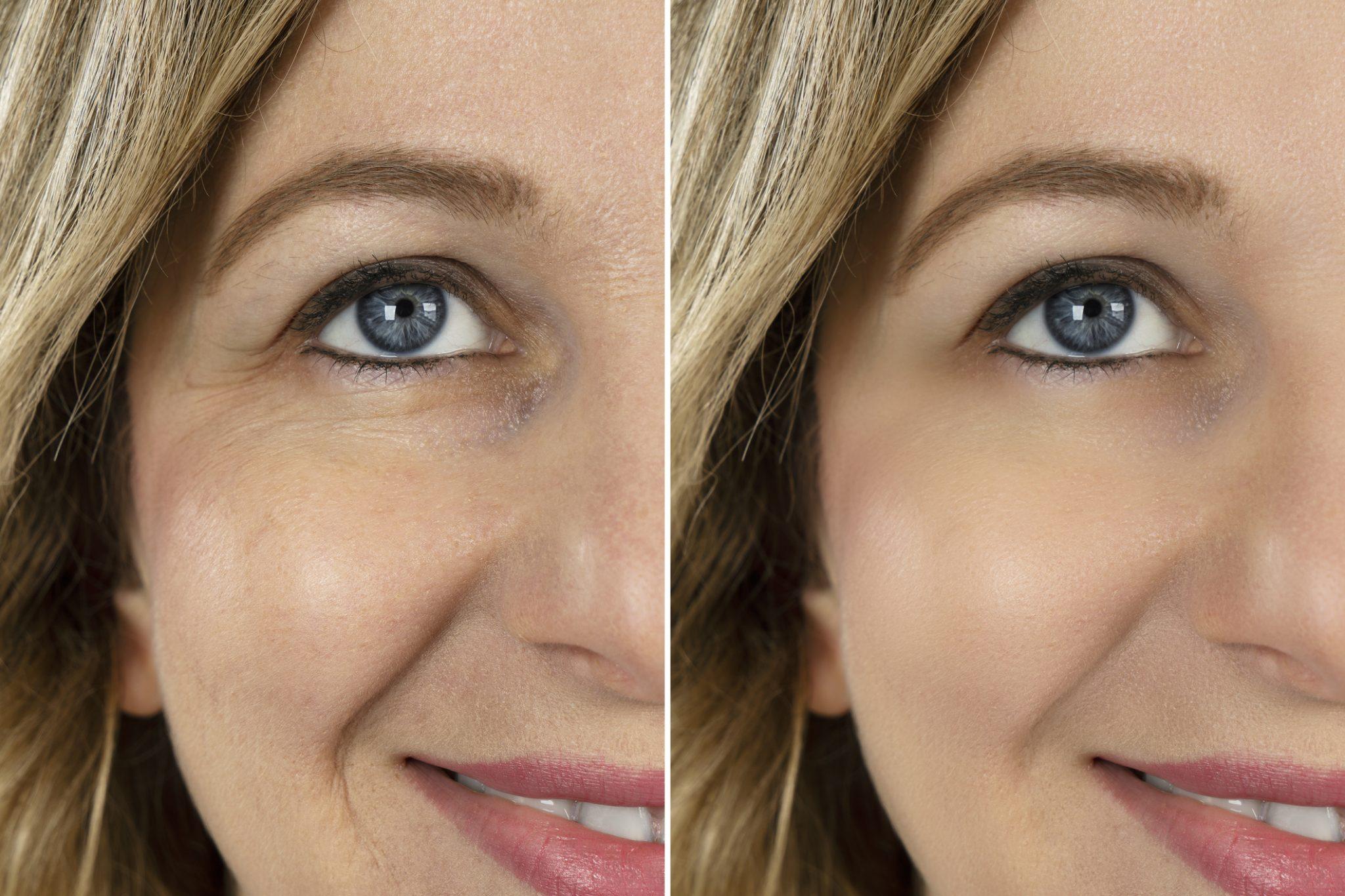 older women Botox areas