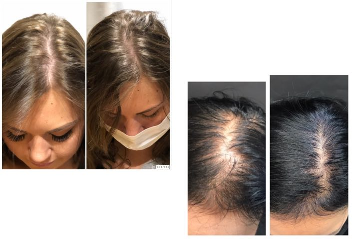 before-afters-hair-rejuvinationn