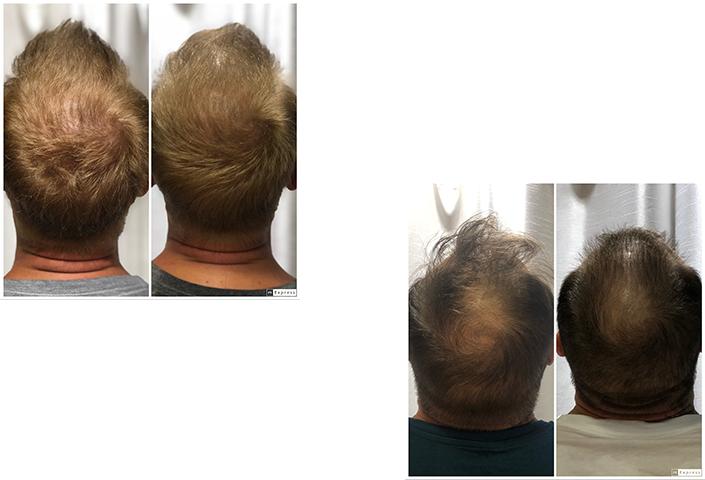 hair-thearpy